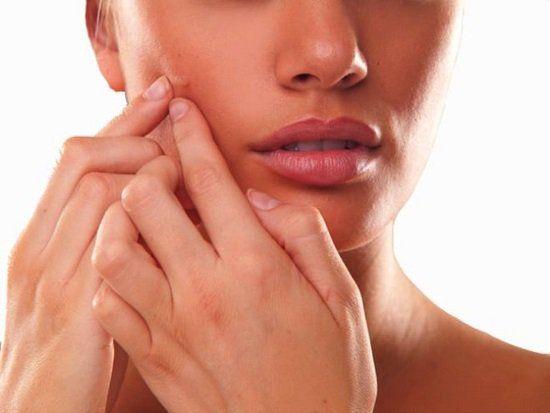 faz-de-acne