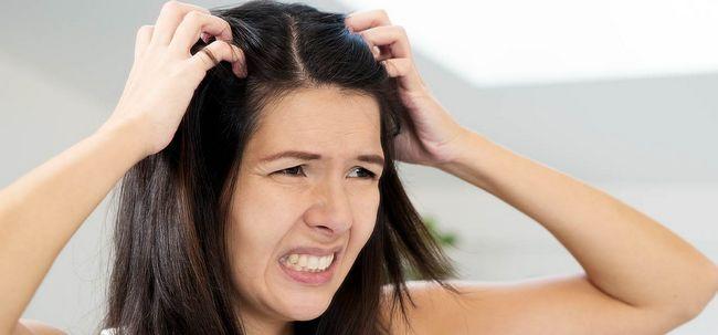 10 Maneiras para combater a caspa grave