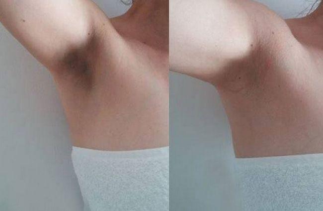 Remédios caseiros simples para se livrar de pêlos encravados