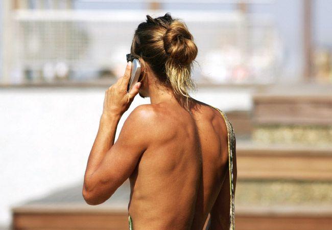 4 Mitos comuns de melanoma