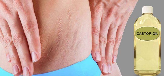 5 Maneiras simples de usar óleo de mamona para o tratamento de estrias