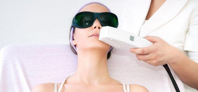 5 Tipos de tratamentos da pele do laser e seus benefícios