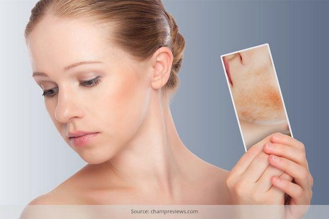 Alimentos que causam acne - você tem que saber o que o alimento para evitar