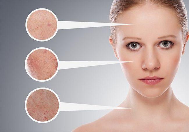 Glicerina Usos Para pele brilhante