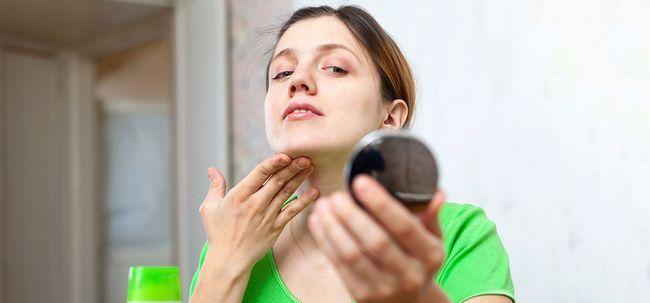 Como evitar e remover espinhas / acne - 21 métodos eficazes que trabalharam para mim