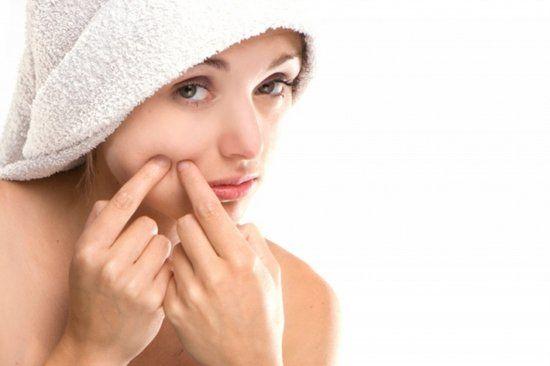 acne-spots-1