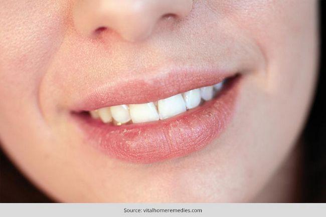 Principais razões para os lábios secos decodificado: quaisquer problemas significativos de saúde para se preocupar?