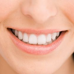 Clareamento dos dentes - a palavra dentro