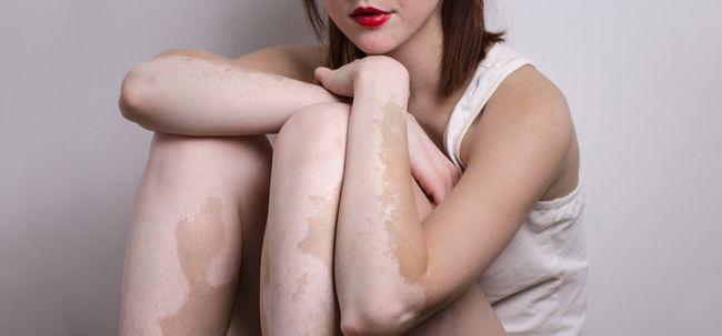 Vitiligo dieta - o que é e como ele ajuda a tratar vitiligo?