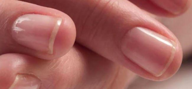 O que é polimento de unhas e como fazê-lo em casa?